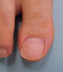 知って得する病気の話 爪の病気について 皮膚科 彦根市立病院